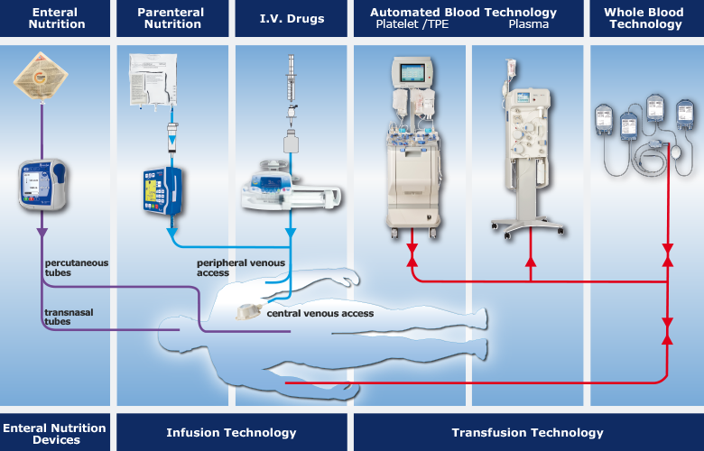 Safe and Efficient Administration of Live-Saving Fluids