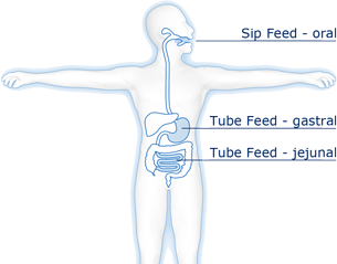 Enteral nutrition uses the gastrointestinal tract