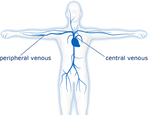 Parenteral nutrition avoids the gastrointestinal tract